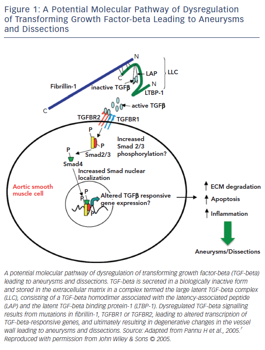 Figure 1: A Potential Molecular Pathway of Dysregulation of Transforming Growth Factor-beta Leading to Aneurysms and Dissections