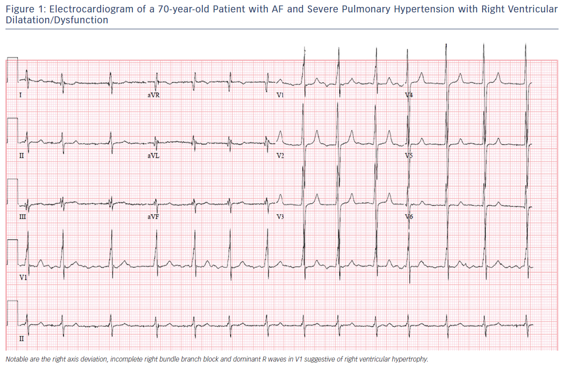 Figure 1: Electrocardiogram of a 70-year-old Patient with AF and Severe Pulmonary Hypertension with Right Ventricular Dilatation/Dysfunction