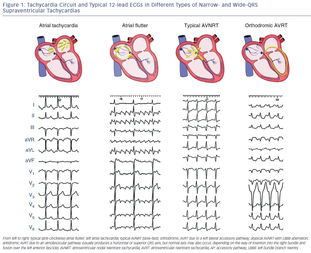 Figure 1: Tachycardia Circuit and Typical 12-lead ECGs in Different Types of Narrow- and Wide-QRS Supraventricular Tachycardias