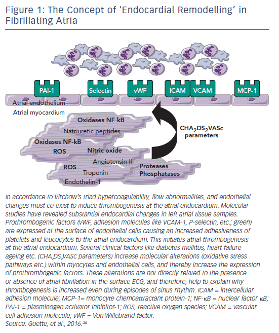 Figure 1: The Concept of 'Endocardial Remodelling' in Fibrillating Atria