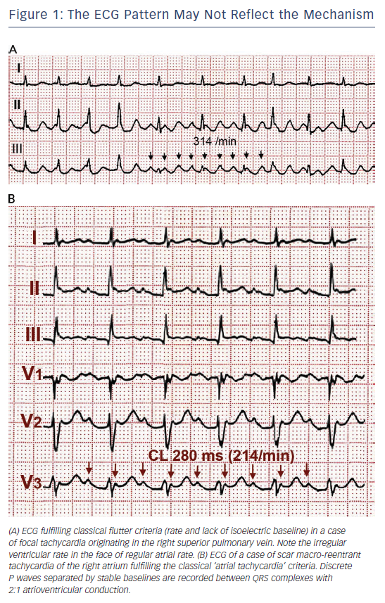 Atrial Flutter, Typical And Atypical