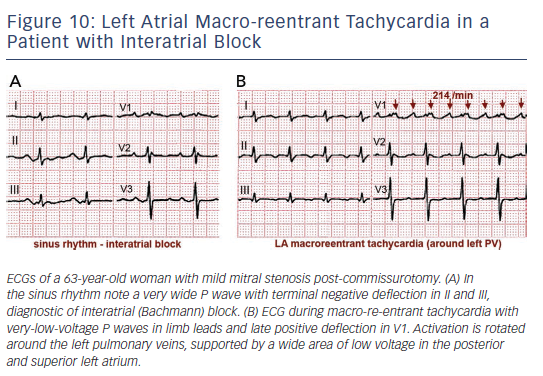 Figure 10: Left Atrial Macro-reentrant Tachycardia in a Patient with Interatrial Block