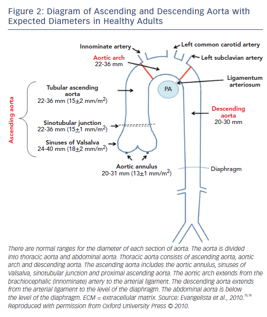 Figure 2: Diagram of Ascending and Descending Aorta with Expected Diameters in Healthy Adults