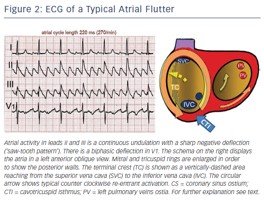 atrial flutter typical and atypical
