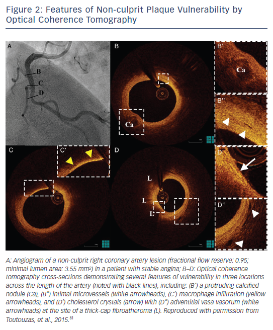 Figure 2: Features of Non-culprit Plaque Vulnerability by Optical Coherence Tomography