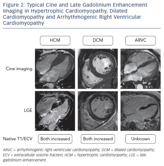 Figure 2: Typical Cine and Late Gadolinium Enhancement Imaging in Hypertrophic Cardiomyopathy, Dilated Cardiomyopathy and Arrhythmogenic Right Ventricular Cardiomyopathy