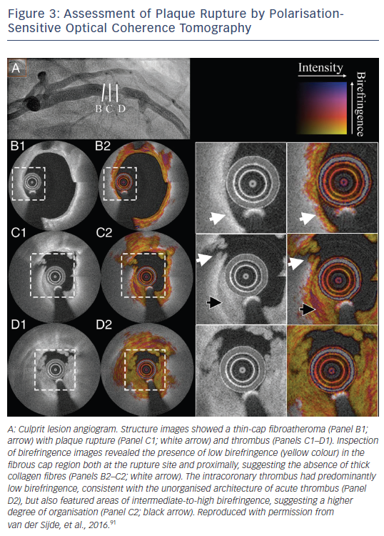 Figure 3: Assessment of Plaque Rupture by Polarisation-Sensitive Optical Coherence Tomography