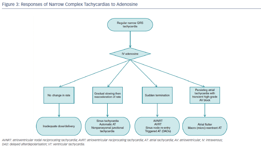 Figure 3: Responses of Narrow Complex Tachycardias to Adenosine