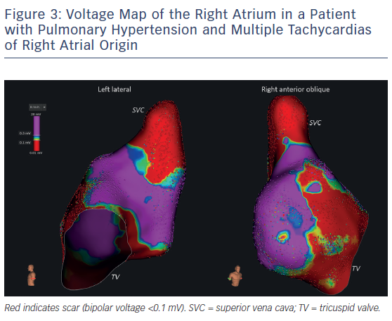 Figure 3: Voltage Map of the Right Atrium in a Patient with Pulmonary Hypertension and Multiple Tachycardias of Right Atrial Origin
