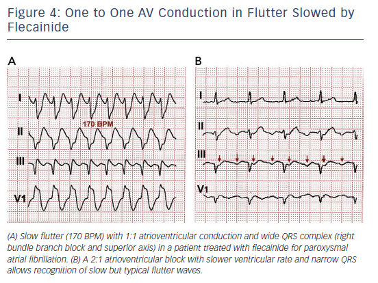 Figure 4: One to One AV Conduction in Flutter Slowed by Flecainide