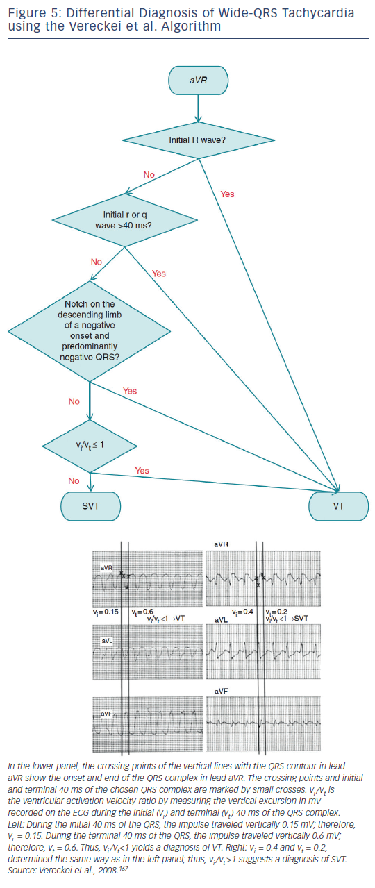 Figure 5: Differential Diagnosis of Wide-QRS Tachycardia using the Vereckei et al. Algorithm