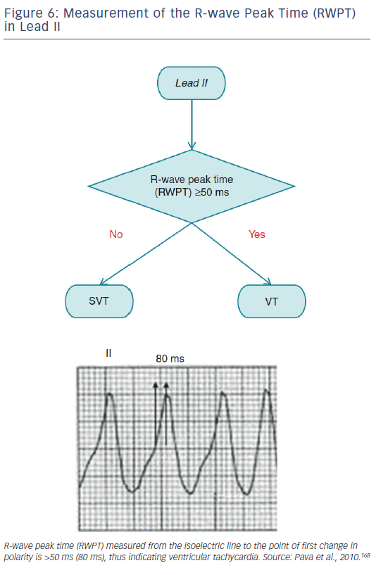 Figure 6: Measurement of the R-wave Peak Time (RWPT) in Lead II