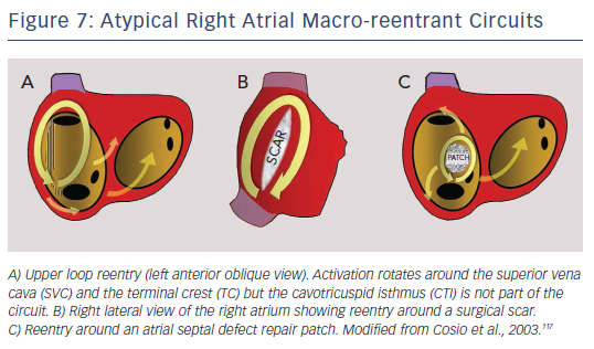 Figure 7: Atypical Right Atrial Macro-reentrant Circuits