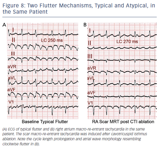 Figure 8: Two Flutter Mechanisms, Typical and Atypical, in the Same Patient