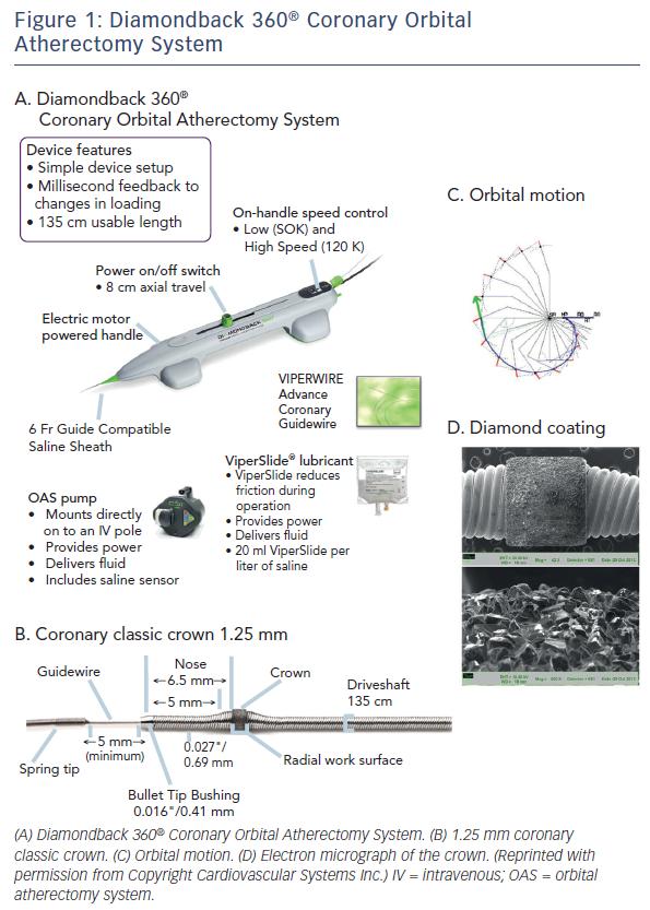 Diamondback 360® Coronary Orbital Atherectomy System