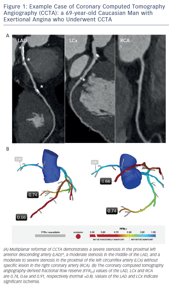 Figure 1: Example Case of Coronary Computed Tomography Angiography (CCTA): a 69-year-old Caucasian Man with Exertional Angina who Underwent CCTA