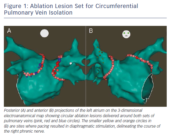 Figure 1: Ablation Lesion Set for Circumferential Pulmonary Vein Isolation