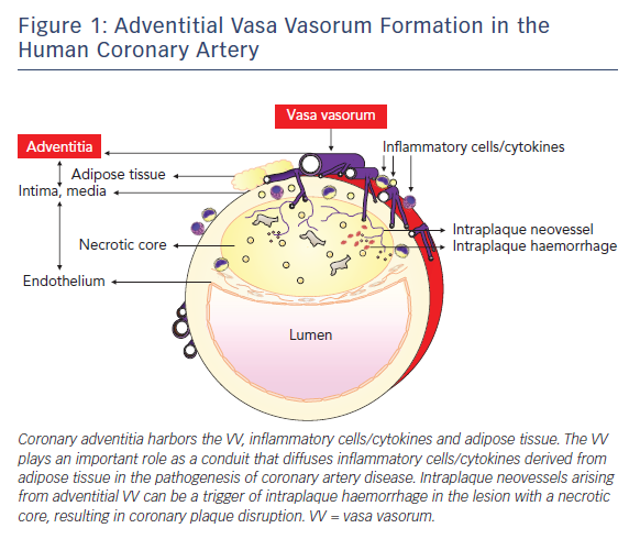 Figure 1: Adventitial Vasa Vasorum Formation in the Human Coronary Artery