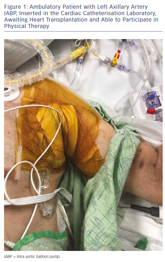 Figure 1: Ambulatory Patient with Left Axillary Artery IABP, Inserted in the Cardiac Catheterisation Laboratory, Awaiting Heart Transplantation and Able to Participate in Physical Therapy