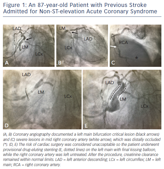 Figure 1: An 87-year-old Patient with Previous Stroke Admitted for Non-ST-elevation Acute Coronary Syndrome