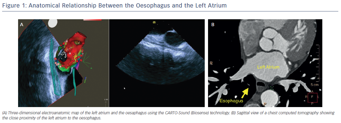 Figure 1: Anatomical Relationship Between the Oesophagus and the Left Atrium