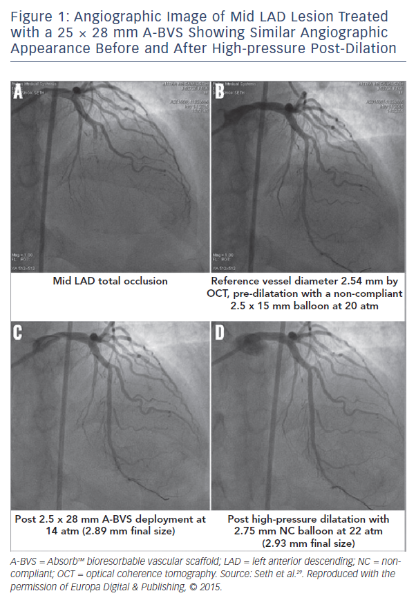 Figure 1: Angiographic Image of Mid LAD Lesion