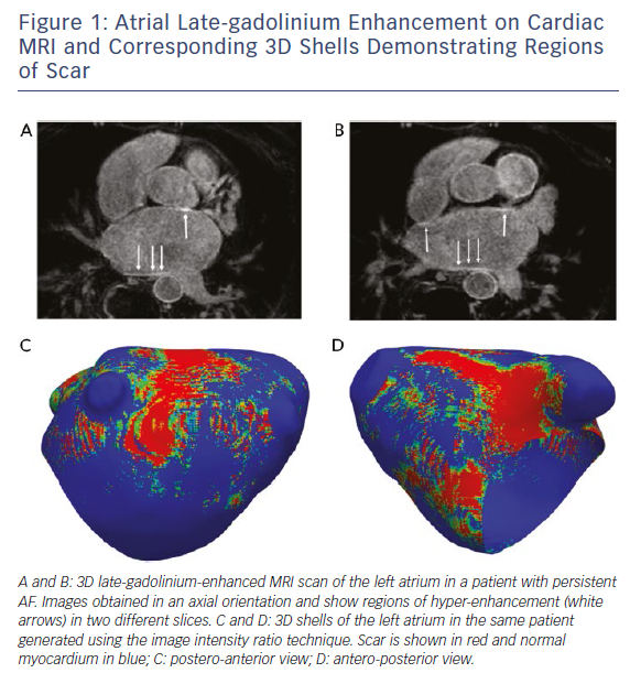 Figure 1: Atrial Late-gadolinium Enhancement on Cardiac MRI and Corresponding 3D Shells Demonstrating Regions of Scar