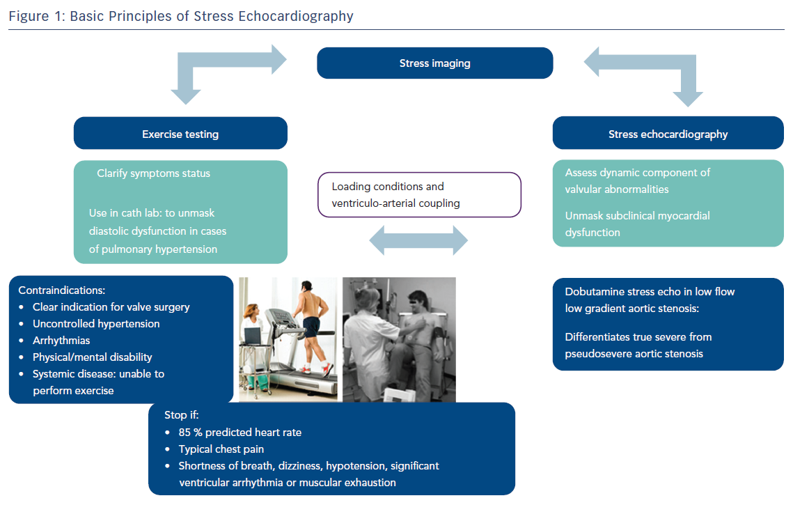 Figure 1: Basic Principles of Stress Echocardiography