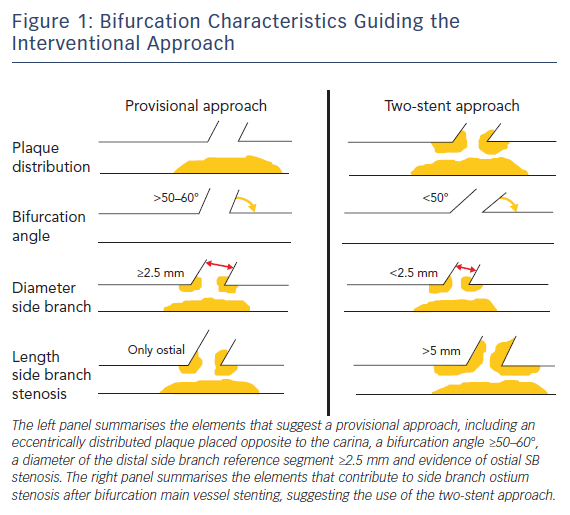 Bifurcation Characteristics Guiding the Interventional Approach