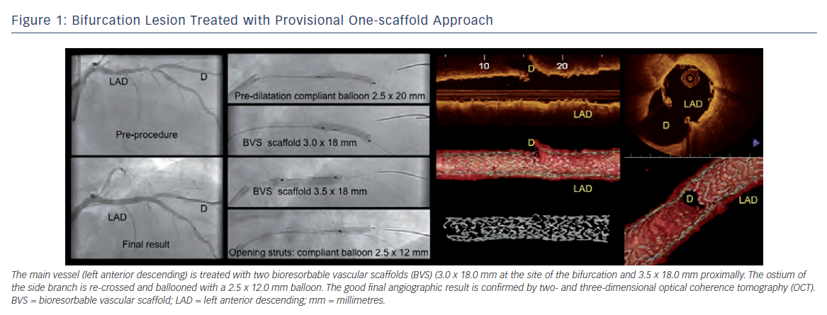 Bifurcation Lesion Treated with Provisional One-scaffold Approach