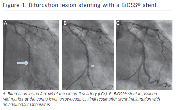 Figure 1: Bifurcation lesion stenting with a BiOSS® stent