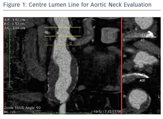 Centre Lumen Line for Aortic Neck Evaluation