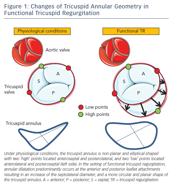 Figure 1: Changes of Tricuspid Annular Geometry in Functional Tricuspid Regurgitation