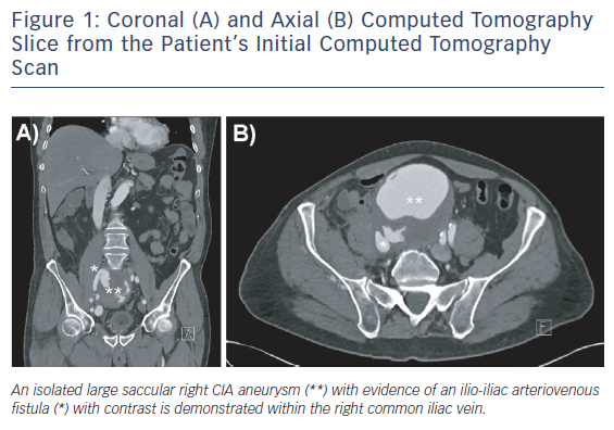 Coronal (A) and Axial (B) Computed Tomography Slice from the Patient's Initial Computed Tomography Scan