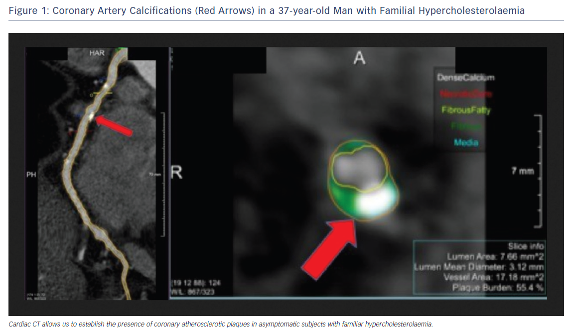 Figure 1: Coronary Artery Calcifications (Red Arrows) in a 37-year-old Man with Familial Hypercholesterolaemia