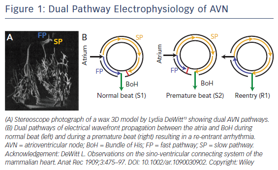 Figure 1: Dual Pathway Electrophysiology of AVN