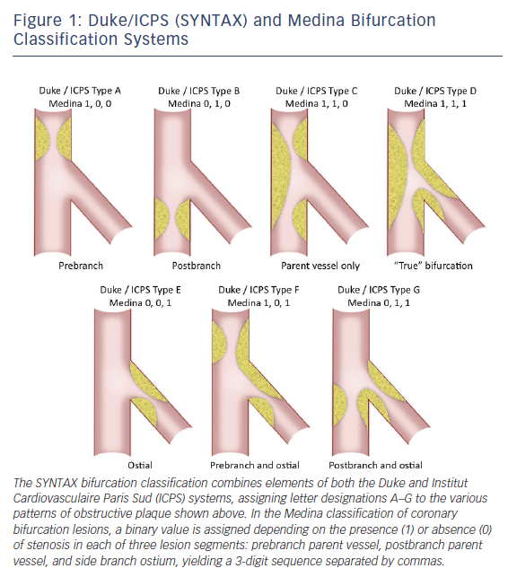 Figure 1: Duke/ICPS (SYNTAX) and Medina Bifurcation Classification Systems