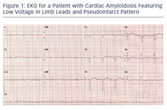 EKG for a Patient with Cardiac Amyloidosis Featuring Low Voltage in Limb Leads and Pseudoinfarct Pattern