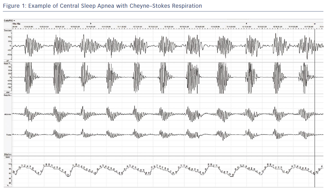 Figure 1: Example of Central Sleep Apnea with Cheyne–Stokes Respiration