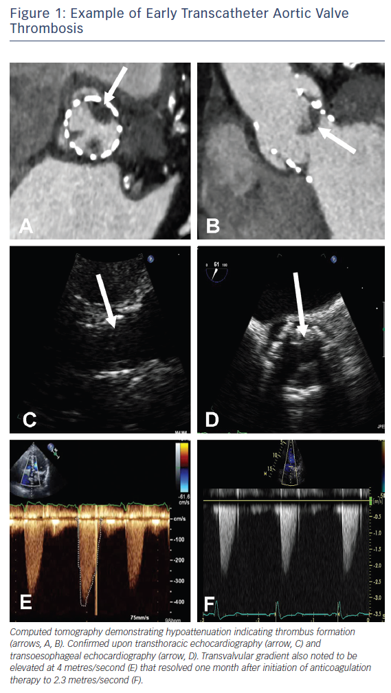 Figure 1: Example of Early Transcatheter Aortic Valve Thrombosis