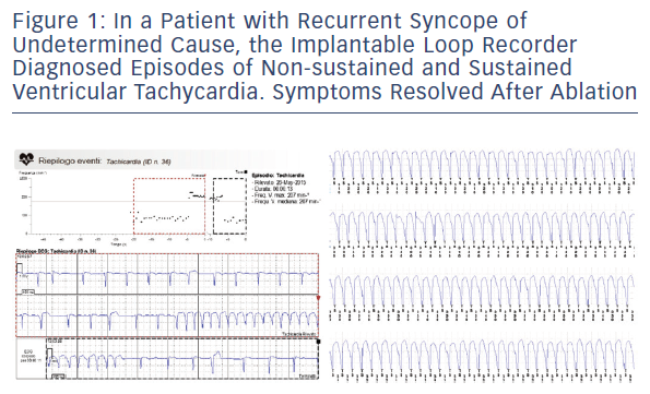 Figure 1: In A Patient With Recurrent Syncope Of Undetermined Cause, The Implantable Loop Recorder Diagnosed Episodes Of Non-Sustained And Sustained Ventricular Tachycardia. Symptoms Resolved After Ablation