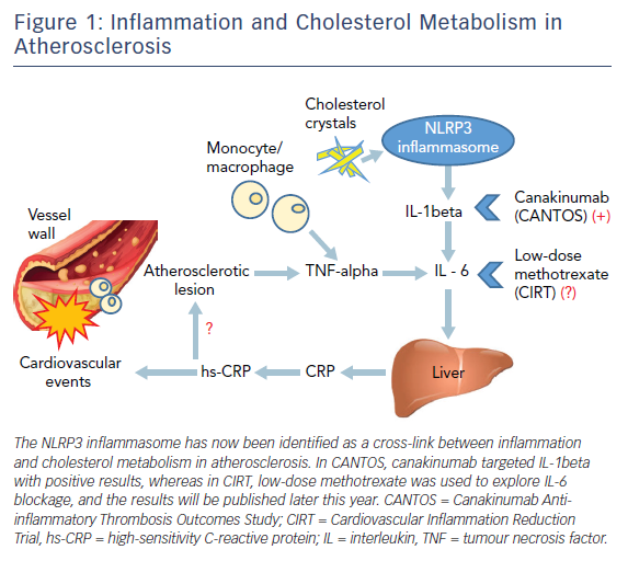 Figure 1: Inflammation and Cholesterol Metabolism in Atherosclerosis