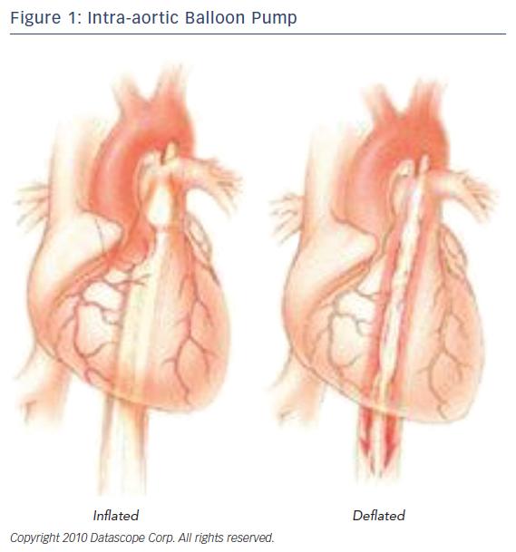 Figure 1: Intra-aortic Balloon Pump