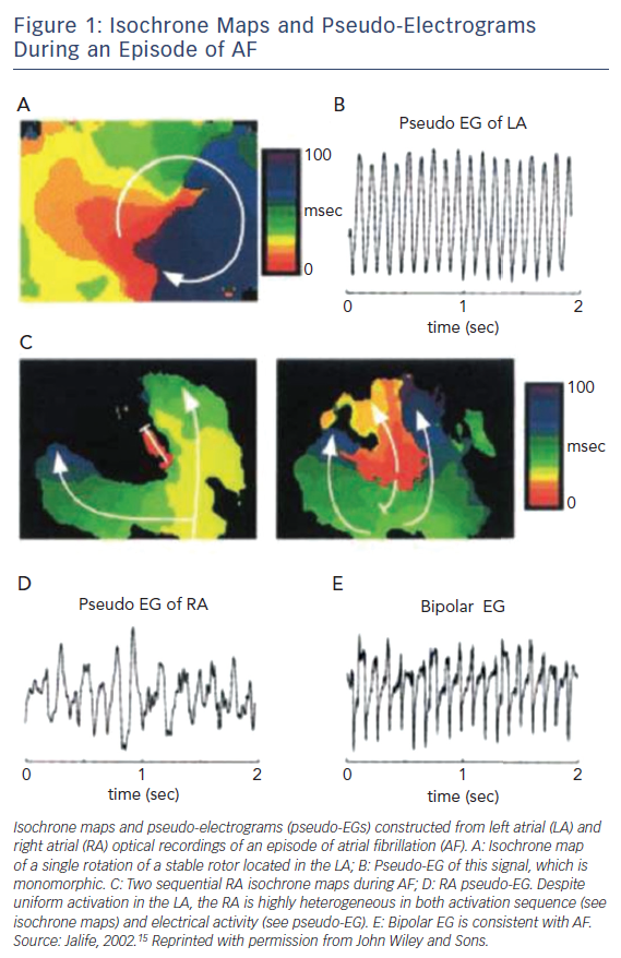 Figure 1: Isochrone Maps and Pseudo-Electrograms During an Episode of AF