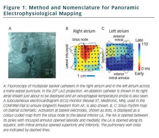 Figure 1: Method and Nomenclature for Panoramic Electrophysiological Mapping