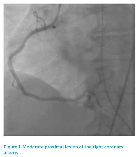 Figure 1. Moderate proximal lesion of the right coronary artery
