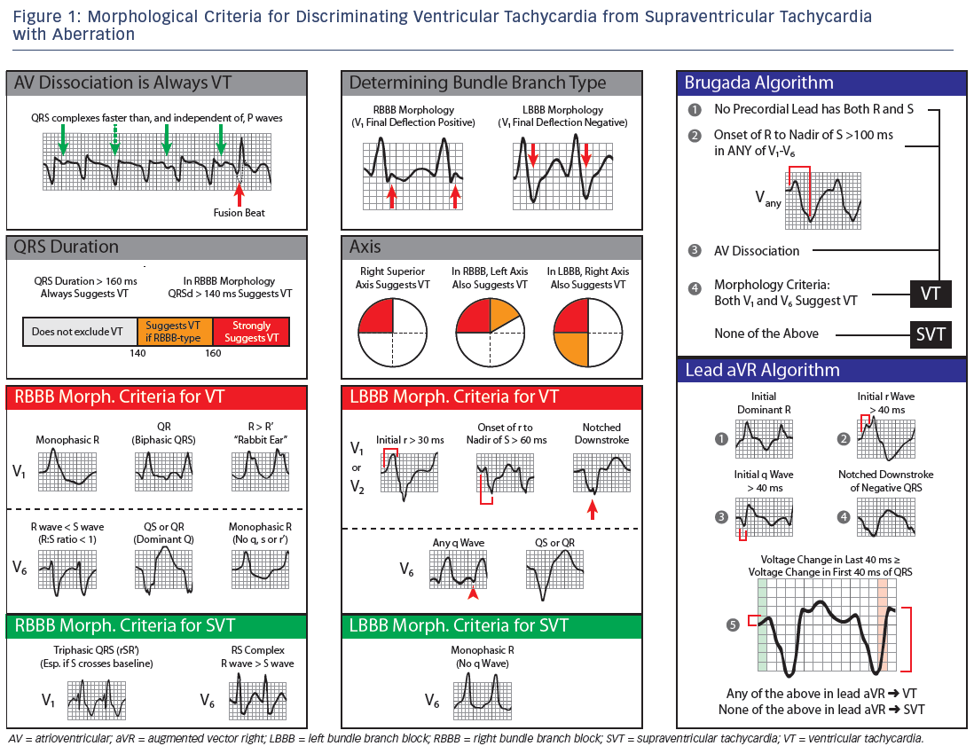 Figure 1: Morphological Criteria for Discriminating Ventricular Tachycardia from Supraventricular Tachycardia with Aberration