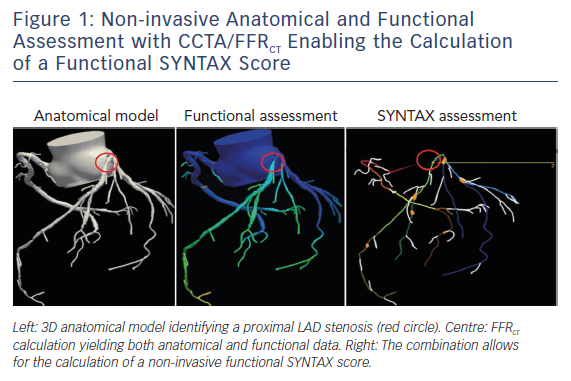 Figure 1: Non-invasive Anatomical and Functional Assessment with CCTA/FFRCT Enabling the Calculation of a Functional SYNTAX Score