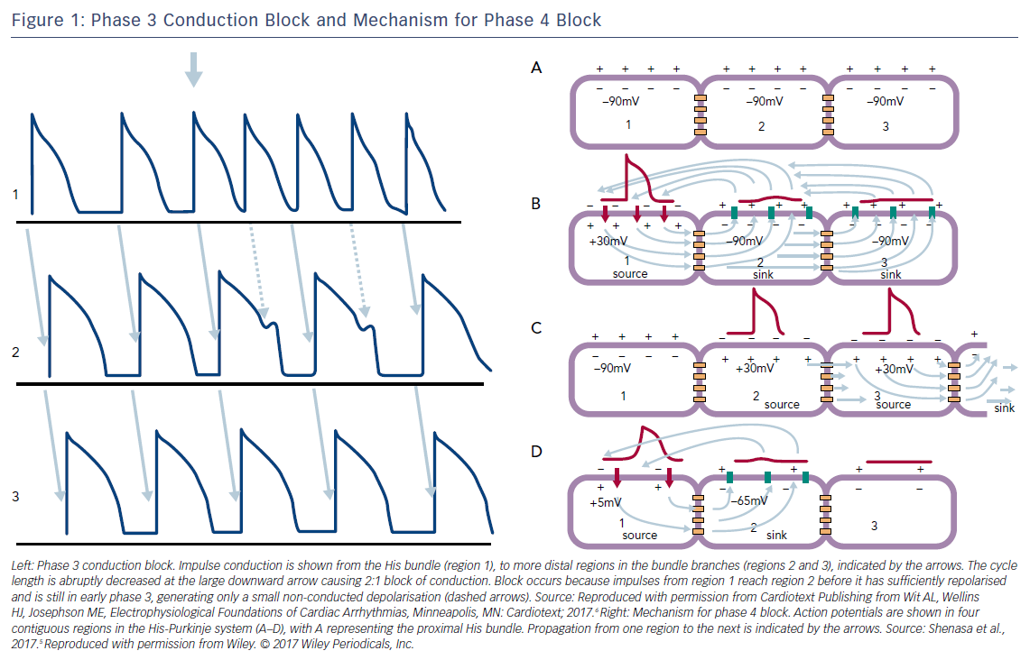 Figure 1: Phase 3 Conduction Block and Mechanism for Phase 4 Block
