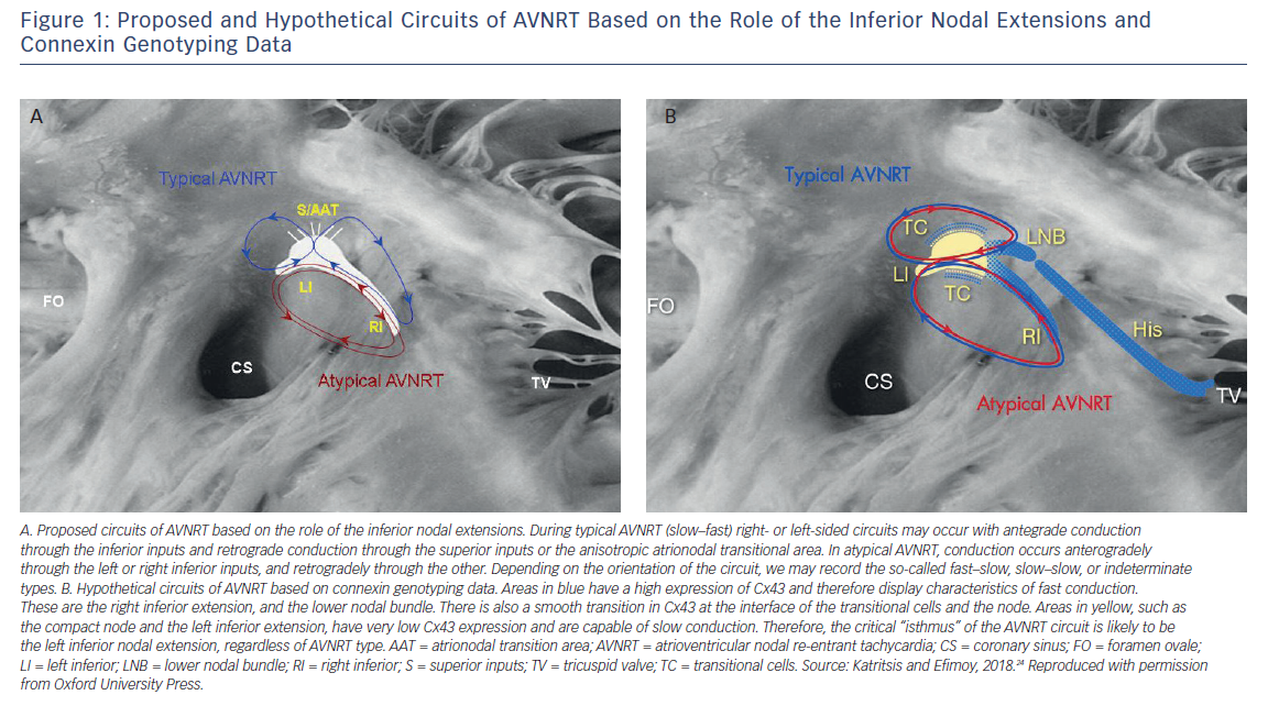 Proposed and Hypothetical Circuits of AVNRT Based on the Role of the Inferior Nodal Extensions and Connexin Genotyping Data